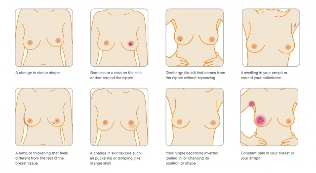 breast-signs-all-tog_1